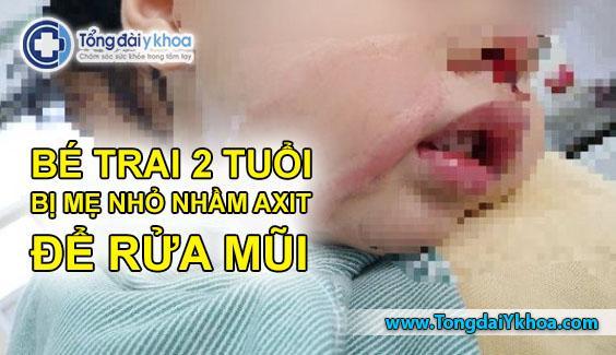 Bé trai bị tổn thương mũi nghiêm trọng sau khi bị nhỏ nhầm dung dịch axit để rửa mũi. Ảnh: Người Lao Động