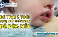 Kinh hoàng: Bé trai 2 tuổi bị mẹ nhỏ nhầm axit để rửa mũi