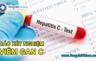 Các xét nghiệm bệnh viêm gan C