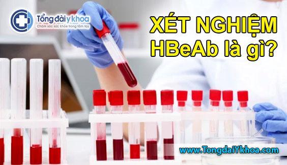 xét nghiệm HBeAb là gì xét nghiệm viêm gan B