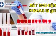 Xét nghiệm HBeAb là gì? Ý nghĩa của xét nghiệm HBeAb