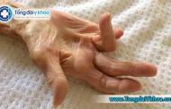 Dấu hiệu, chẩn đoán và điều trị bệnh co rút Depuytren