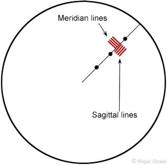 Meridian-Sagittal-Lines-Example-2.png