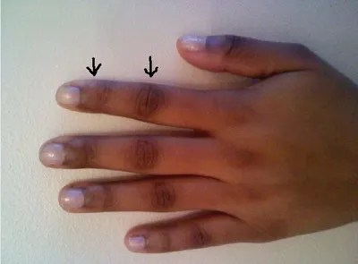 Having Dark Knuckles Doesnt Always Equal Bleaching.  Find Out Why