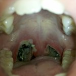 Tonsillectomy photo