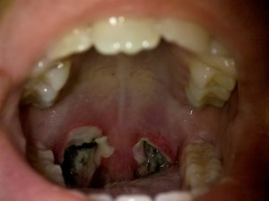 Tonsillectomy pictures