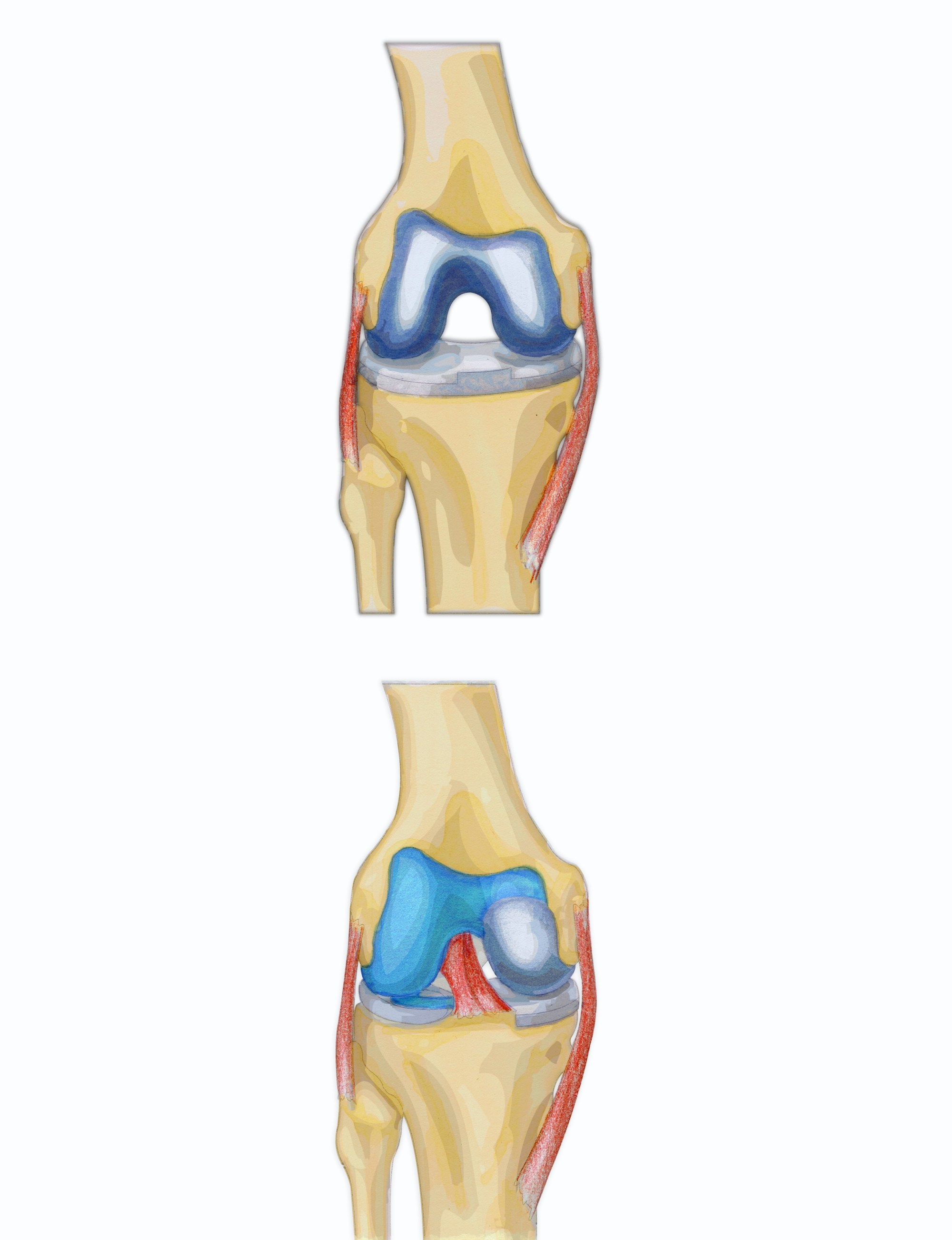 hight resolution of diagram showing full and partial knee replacement