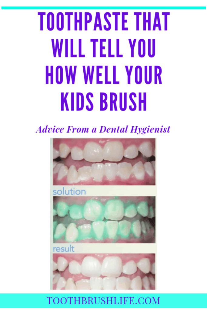 brushing kids teeth ideas