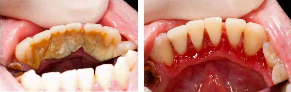 gingivitis and calculus and plaque build up before and after