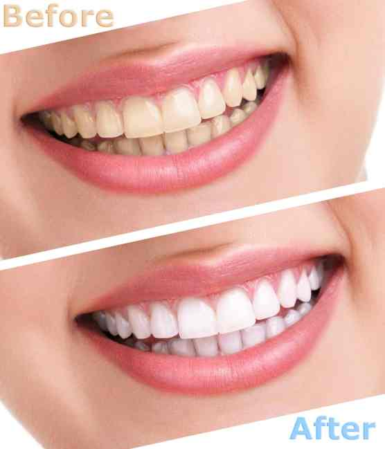 Natural teeth whitening diy