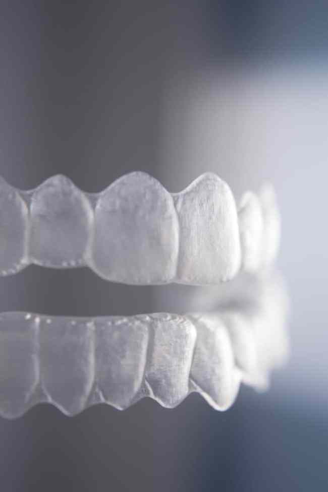 Types of dental retainers essix retainer