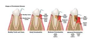 Reclaim Your Smile and Fight Gum Disease with