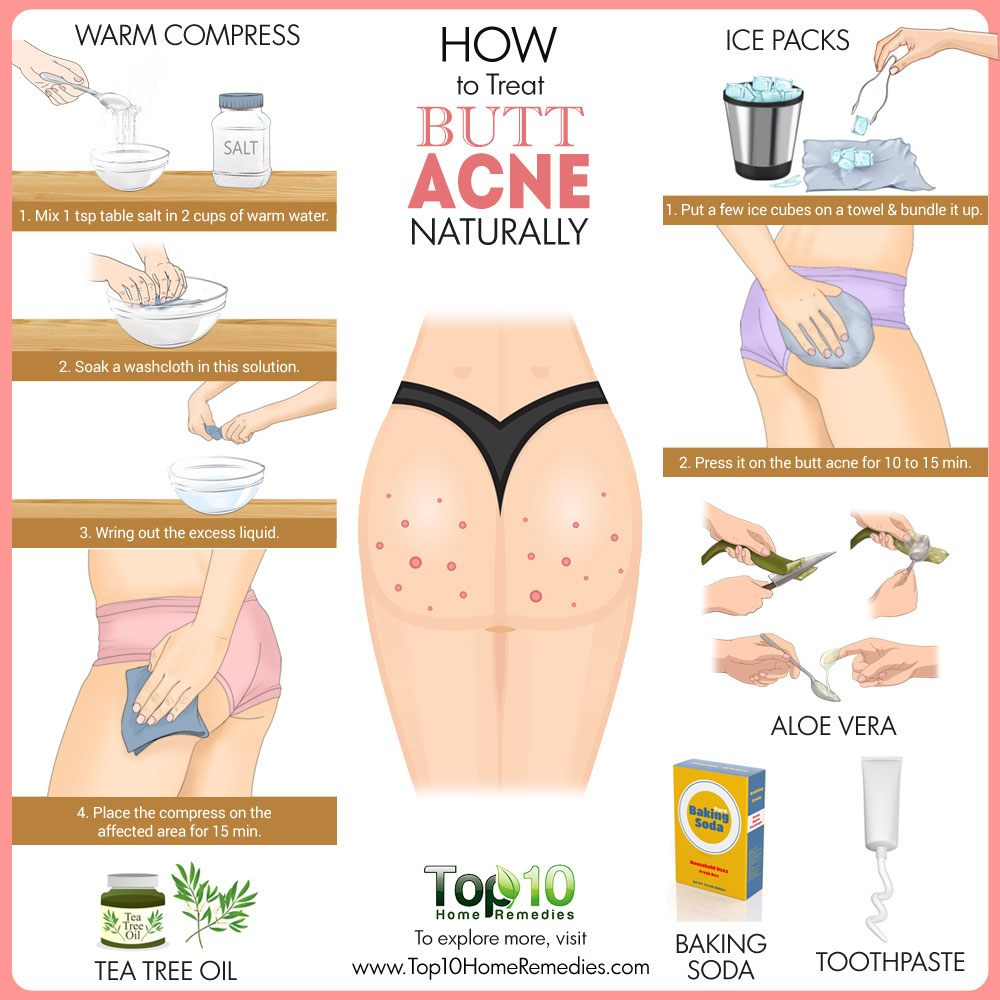 How To Treat Butt Acne Naturally  Top 10 Home Remedies