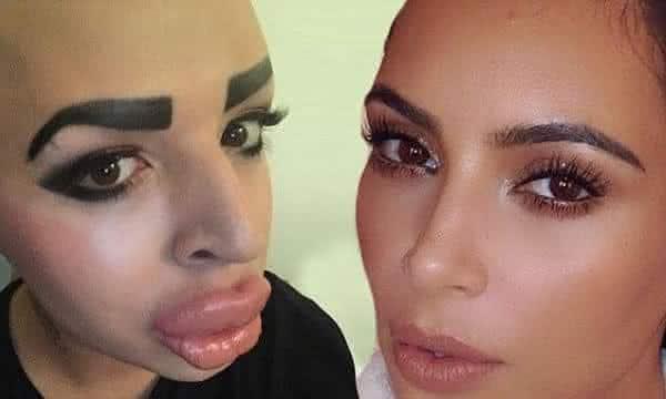 jordan parke kim kardashian entre as cirurgias plasticas mais bizarras do mundo