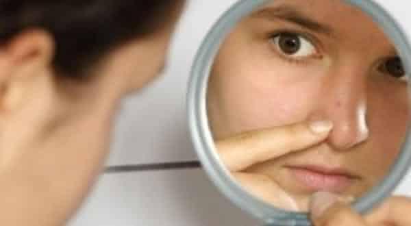 cravos entre os mitos e equivocos relacionados a acne