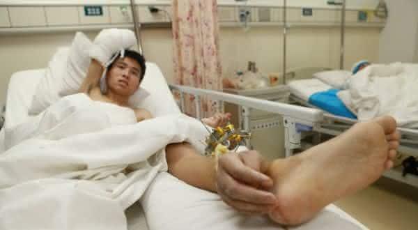 maos nas pernas entre as partes do corpo re-implantadas em cirurgias