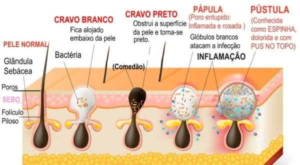bacterias  entre as maiores causas da acne