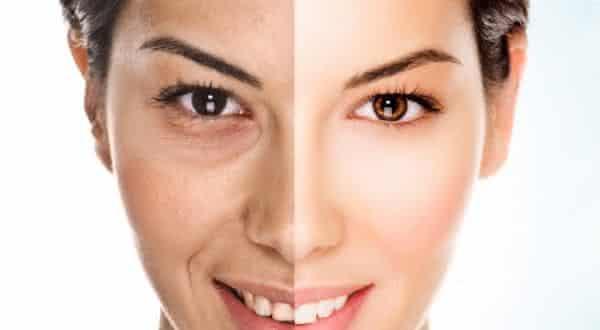 celulas mortas  entre as maiores causas da acne