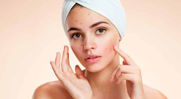 cosmeticos  entre as maiores causas da acne