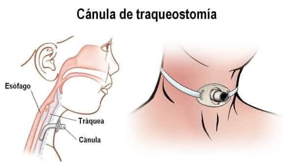 trasqueostomia entre os procedimentos médicos mais caros do mundo