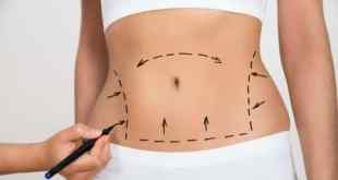 Abdominoplastia entre as cirurgias plasticas mais caras do mundo