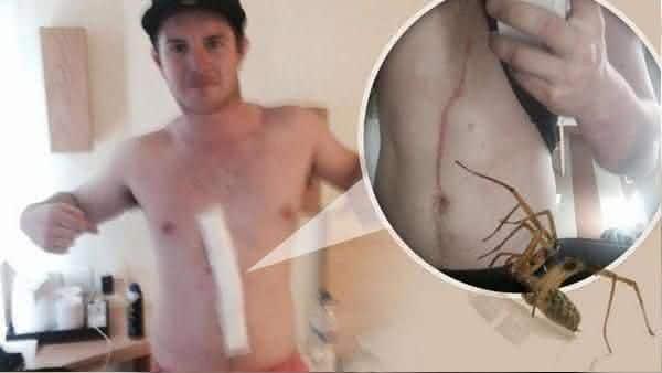 Aranha no Estomago entre as coisas horripilantes encontradas vivendo dentro do corpo humano