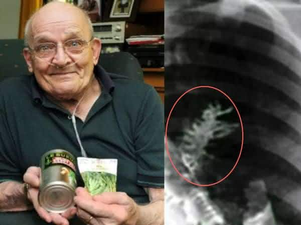 planta de ervilha entre as coisas horripilantes encontradas vivendo dentro do corpo humano