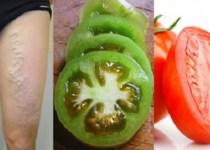 tomate deshace Las Venas Varicosas
