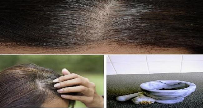 Elimina la caida del cabello estimulando el crecimiento rápido con estas dos recetas caseras