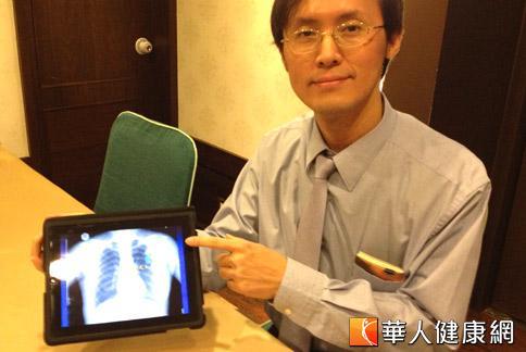 游泳別太激烈!小心人工血管斷裂   華人健康網