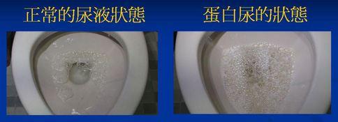晨起泡沫尿難消 腎病癥候群找上門 | 華人健康網