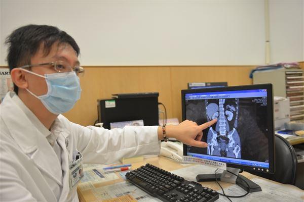 無痛血尿莫輕忽!恐尿路腫瘤惹禍 | 華人健康網