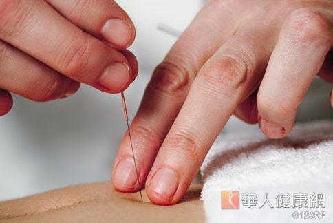 緩解五十肩 中醫針灸推拿新選擇   華人健康網