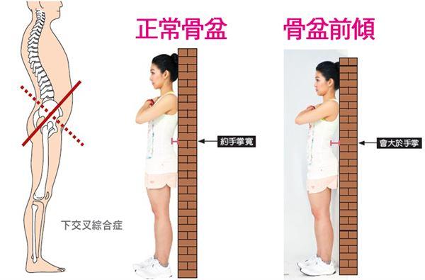骨盆前傾不是胖!學筋肉媽媽瘦小腹 | 華人健康網