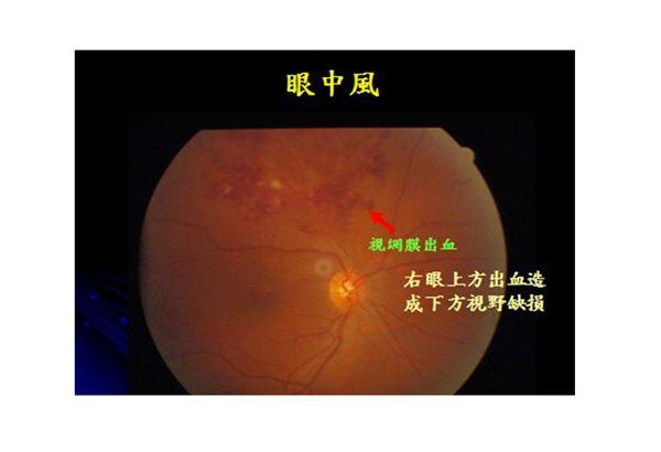 腦中風也有三部曲!眼中風會演變成腦中風嗎? | 華人健康網
