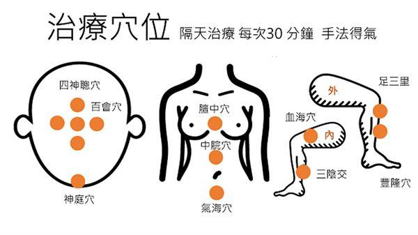 針灸活化大腦!治療血管性失智癥有一套 | 華人健康網