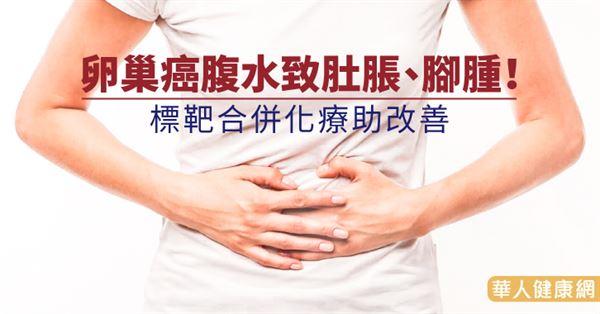 卵巢癌腹水致肚脹,腳腫!標靶合併化療助改善 | 華人健康網