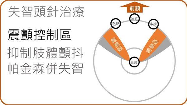 頭皮針如何治療失智癥?9張圖告訴你 | 華人健康網