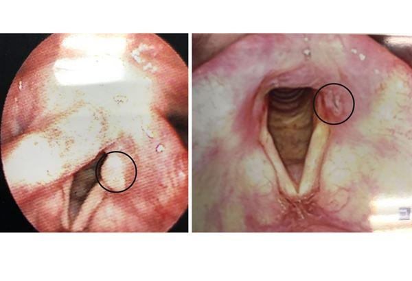 喉嚨卡卡,「喉嚨炎」,等到出現喉嚨痛一直都好不了時,確認為囊腫! - 每日頭條