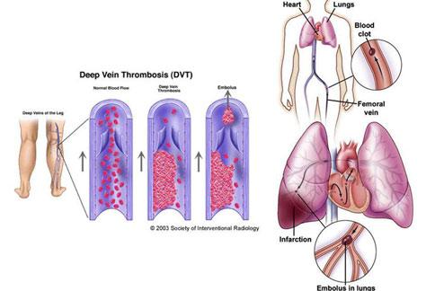 血管栓塞會致命 物理性血栓抽吸新治療   華人健康網