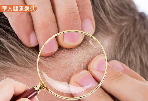 愛抽菸恐加速雄性禿毛囊萎縮,早期發現快治療 | 華人健康網