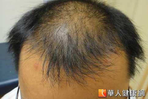 天冷雄性禿患者增多 治療前先評估   華人健康網