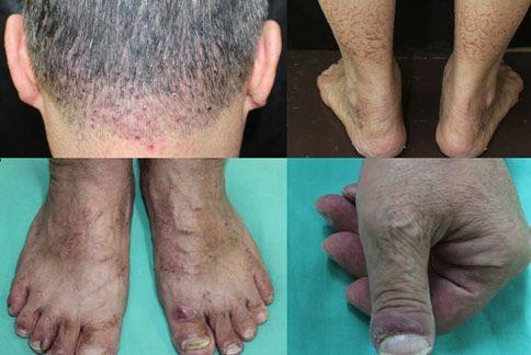 癌症患容易出現皮膚相關副作用,患者應該與主治醫師討論,適時調整藥物。(圖片提供/三軍總醫院)