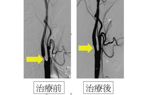 【頸動脈·支架】頸動脈支架 – TouPeenSeen部落格