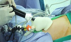 孕婦腹痛畸胎瘤作怪 慎防發生扭轉 | 產前照護 | 育嬰親子 | 華人健康網