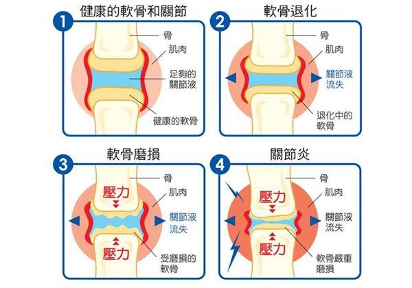 膝關節置換客製化!機器人手臂增成功率 | 骨科 | 健康新知 | 華人健康網