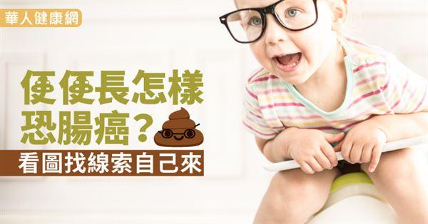 便便長怎樣恐腸癌?看圖找線索自己來(大腸癌) - 華人健康網 - 防癌 - 良醫健康網 - 商業周刊(百大良醫)