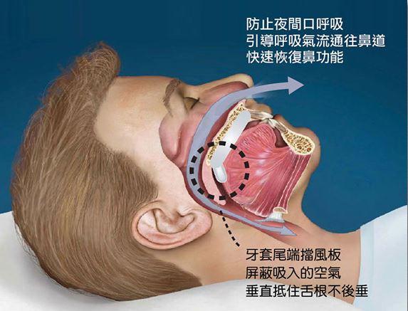止鼾牙套新設計 壓舌矯正呼吸   睡眠呼吸中止癥   耳鼻喉   健康新知   華人健康網