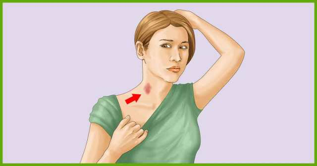 top2homeremedies.com How to get rid of Hickies