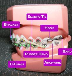 braces diagram [ 1072 x 804 Pixel ]